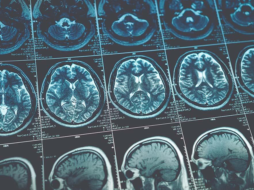 Lesões no cérebro